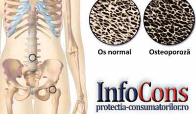 Ziua Internaţională a Osteoporozei